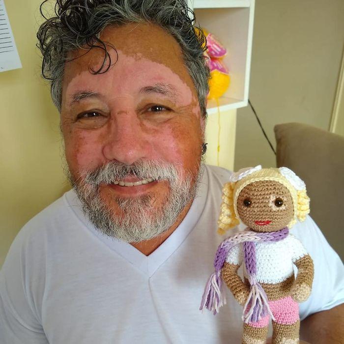 витилиго кукли