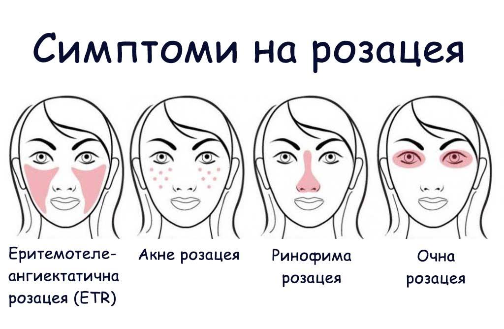 розацея симптоми
