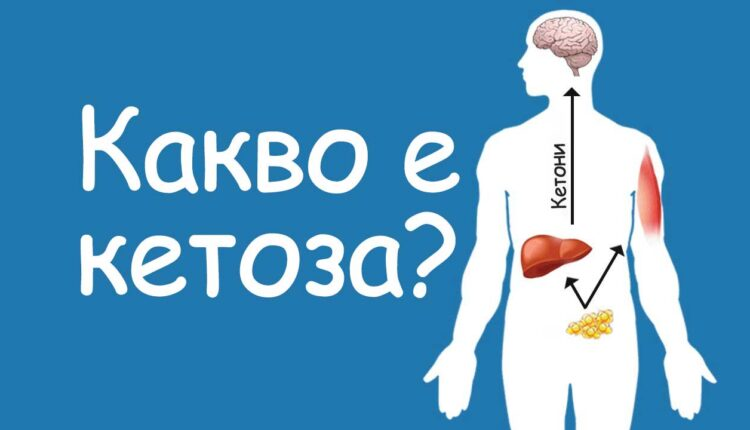 кетоза